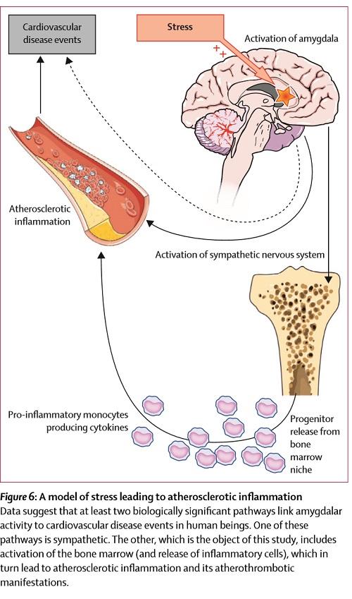 ストレスで動脈硬化の起こるメカニズムの図.jpg