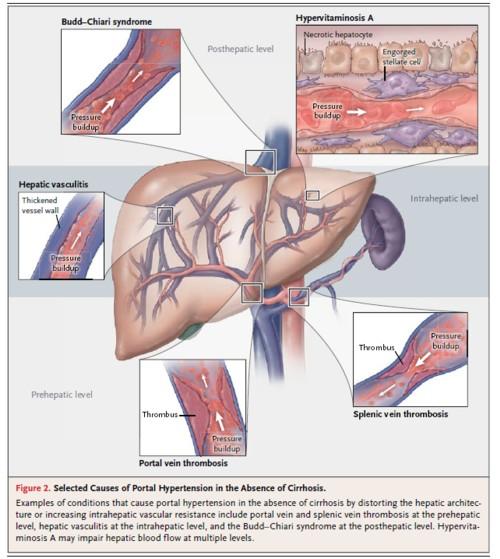 ビタミンAによる門脈圧亢進症の図.jpg