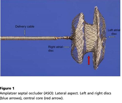 卵円孔閉鎖デバイス.jpg
