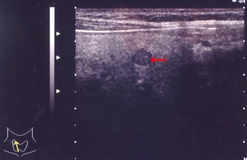甲状腺乳頭癌3.jpg