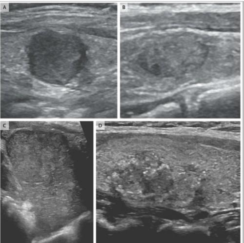 甲状腺癌のエコー所見その1.jpg