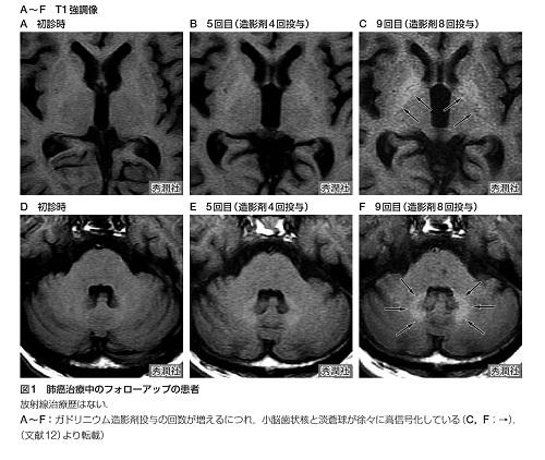 脳へのガドリニウムの沈着.jpg