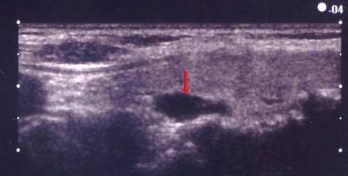 副甲状腺腫.jpg