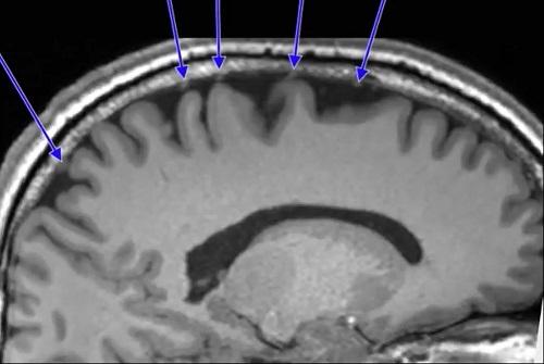 宇宙旅行前の脳.jpg