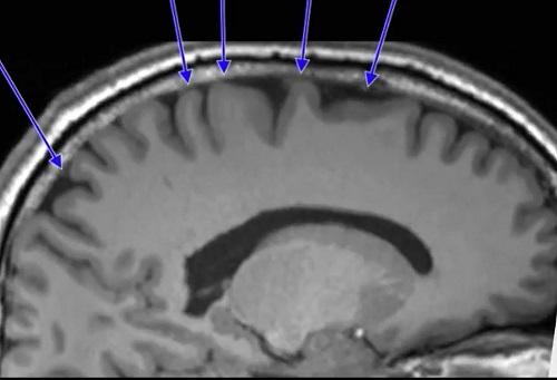 宇宙旅行後の脳.jpg