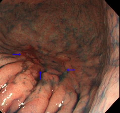 早期3センチ胃癌2.jpg