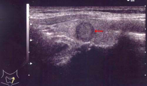 甲状腺乳頭癌1.jpg