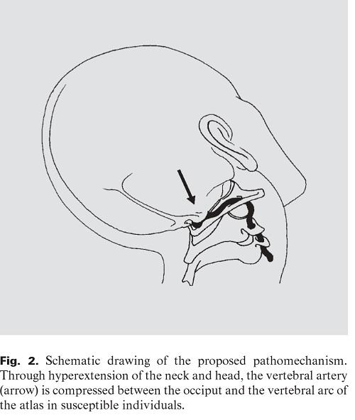 美容院脳卒中症候群の図.jpg