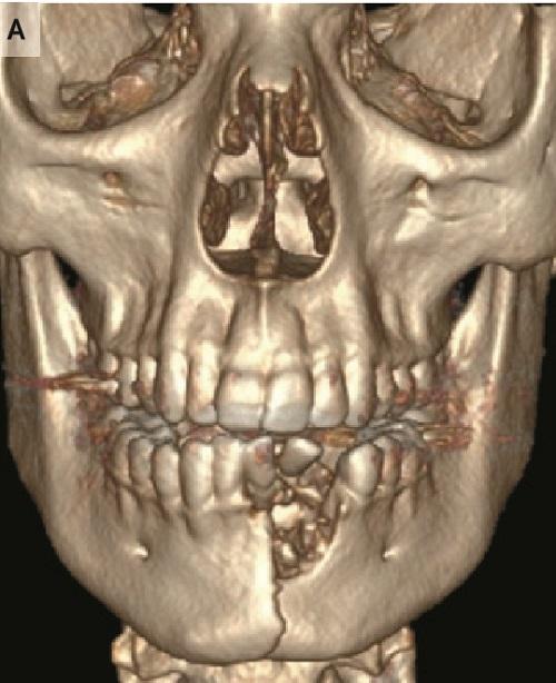 e-シガレットの外傷画像.jpg